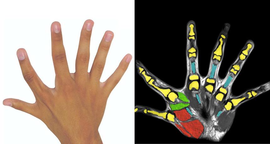 Having six fingers can offer major dexterity advantages