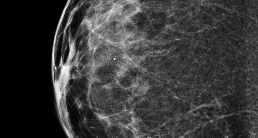 3 D Mammograms Are Popular But Are They Better Than 2 D
