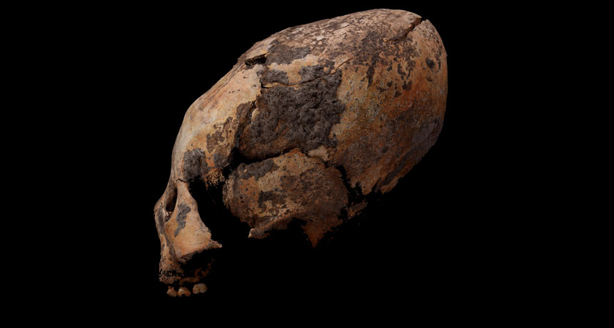 elongated skull from China