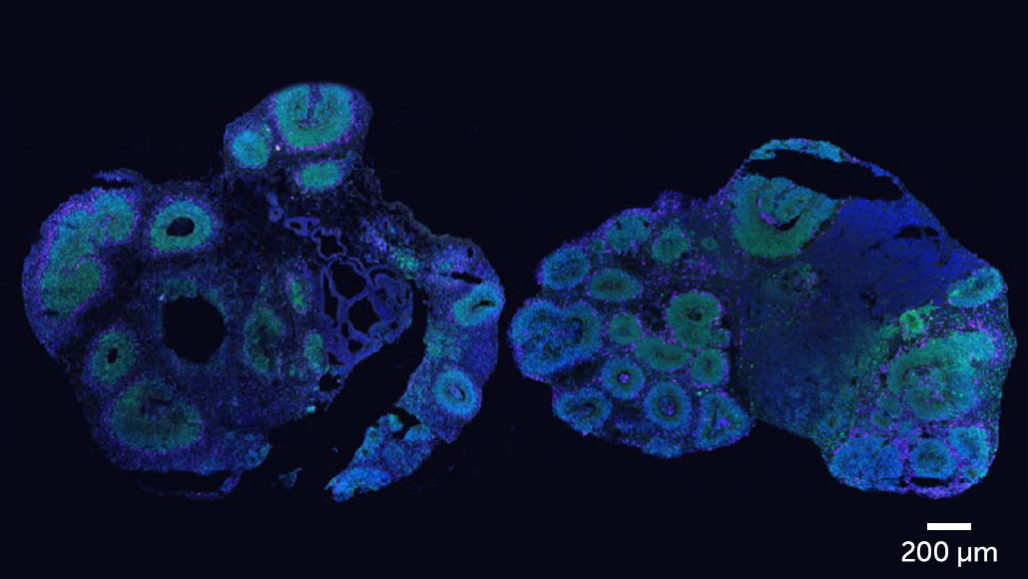 Cerebral organoids made of human cells (left) or chimpanzee cells (right)