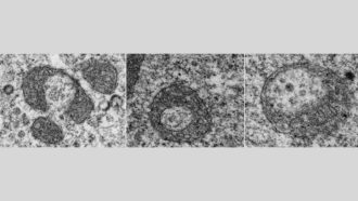 Self-destructing mitochondria may leave some brain cells vulnerable to ALS