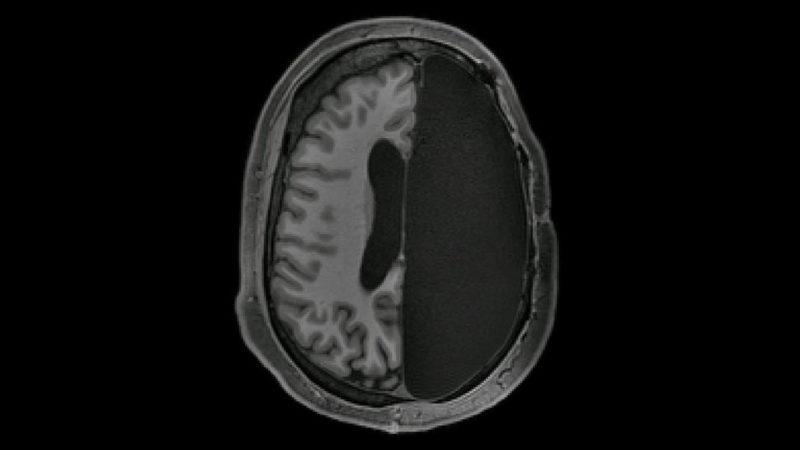 half of a brain