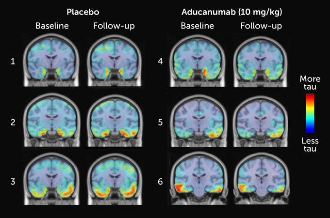 A once-scrapped Alzheimer's drug may work after all, new analyses suggest