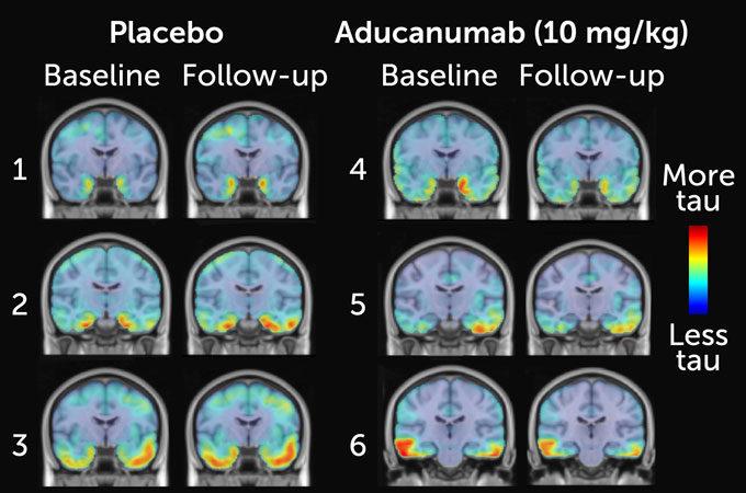 aducanumab treatment analysis