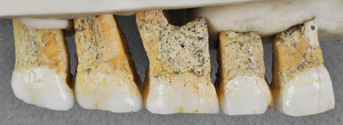 hominid teeth