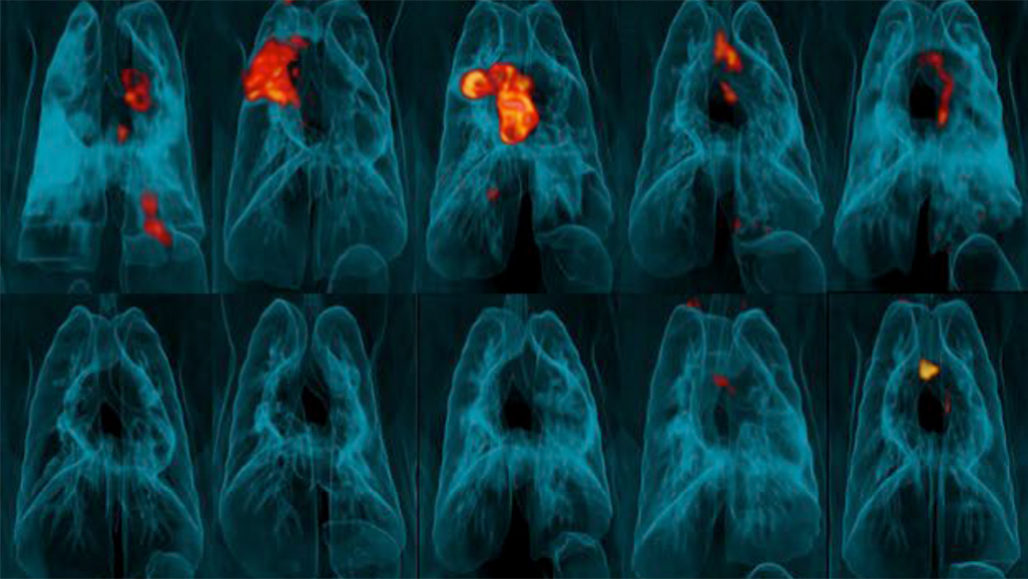 lung scans