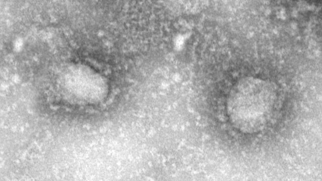 2019-nCoV transmission electron micrograph