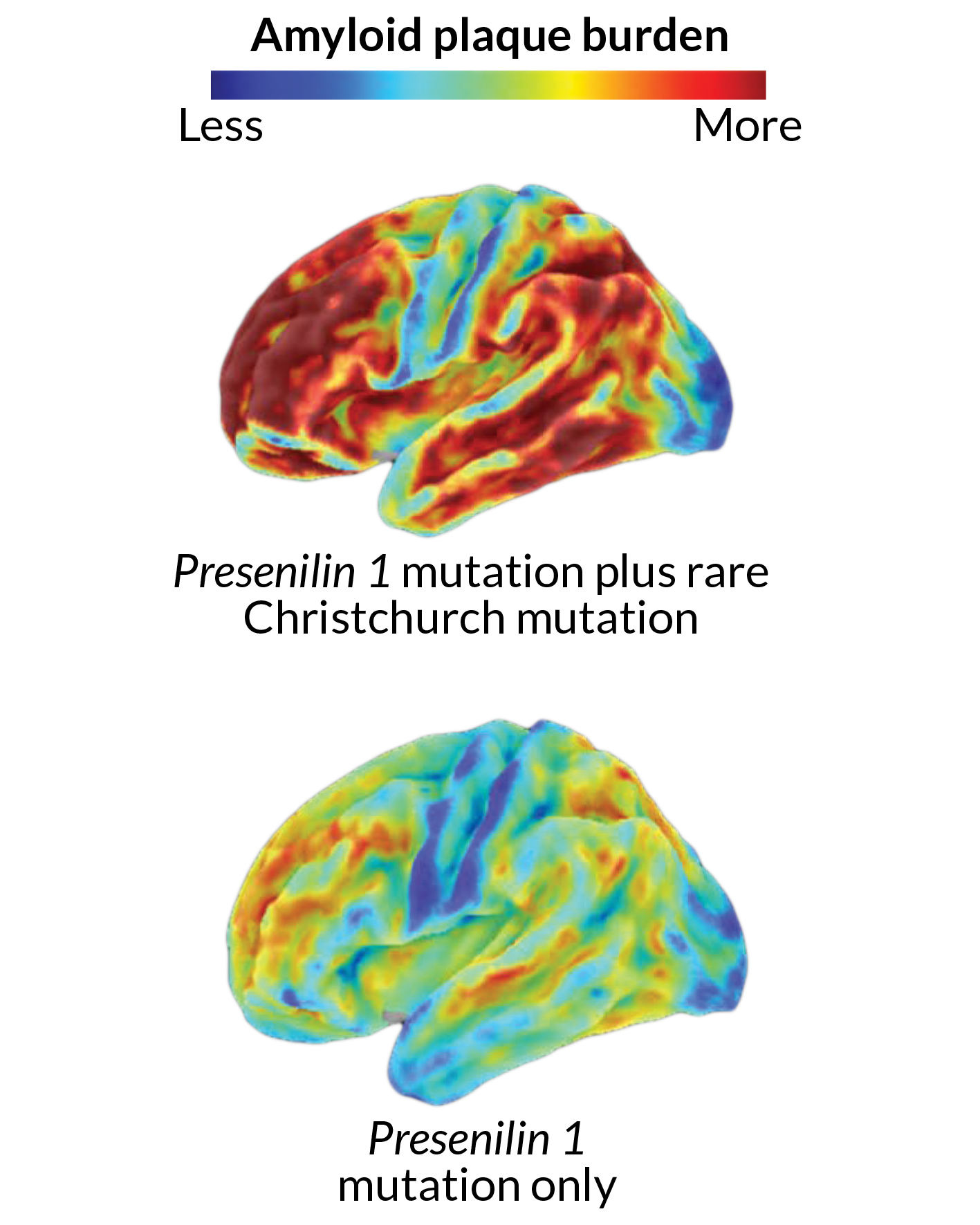 brains with amyloid plaques