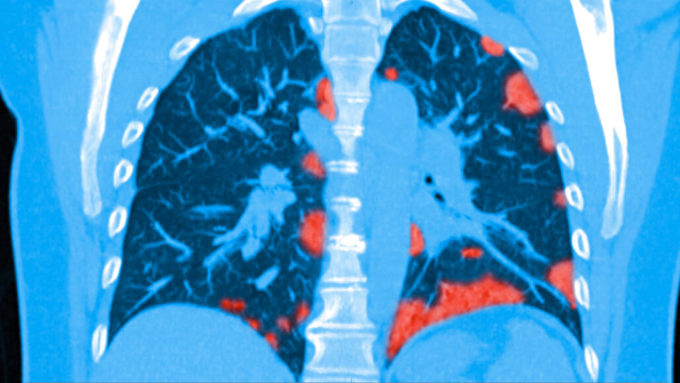 COVID-19 patient lung scan