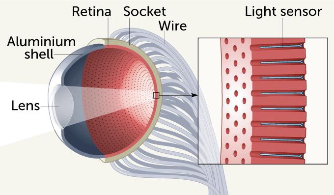 artificial eyeball diagram