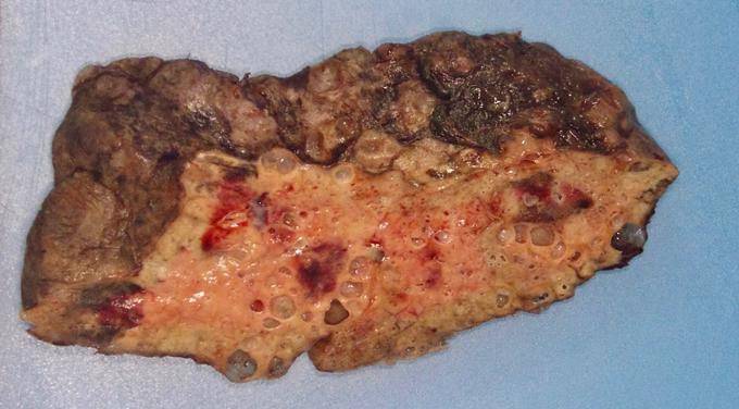 COVID-19 lung