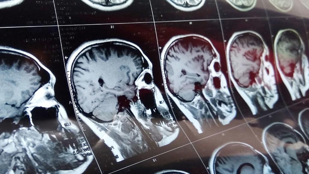 brain MRI images