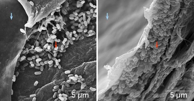 microscope image of melanosomes