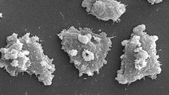 a microscopic image of Naegleria fowleri