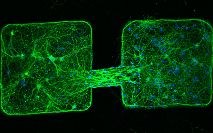 a tiny robot connecting nerve cell clusters