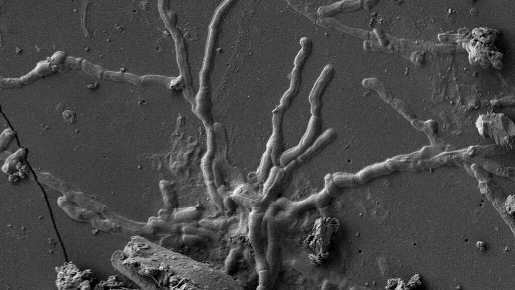 preserved nerve cells