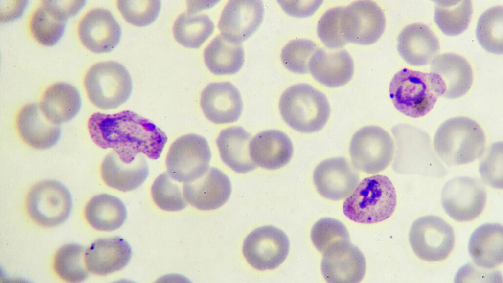 Plasmodium falciparum
