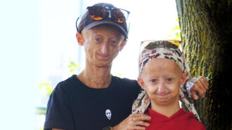 People with the genetic disease progeria
