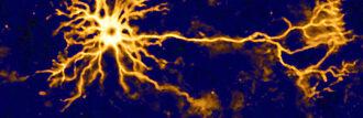 human neuron