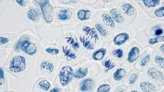 microscope image of plant cells