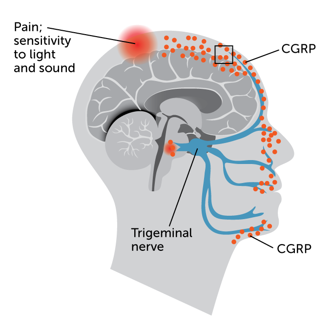 illustration of migraine events in the brain