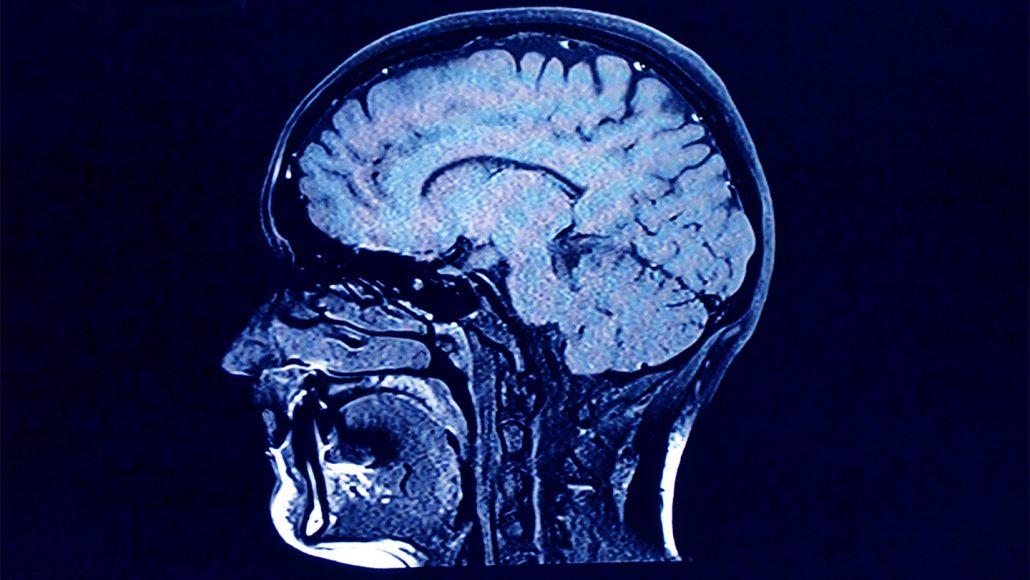scan of human brain