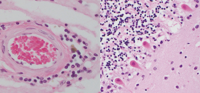 left: Inflamed immune cells around blood vessels. right: cells affected by COVID-19