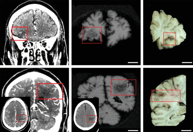 scans of brains with strokes
