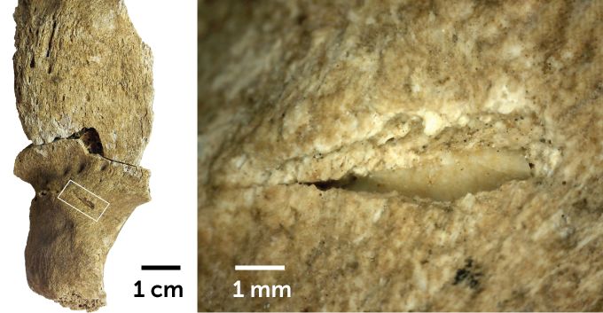 split picture of an overview of a bone (left) and a close up of the puncture (right)