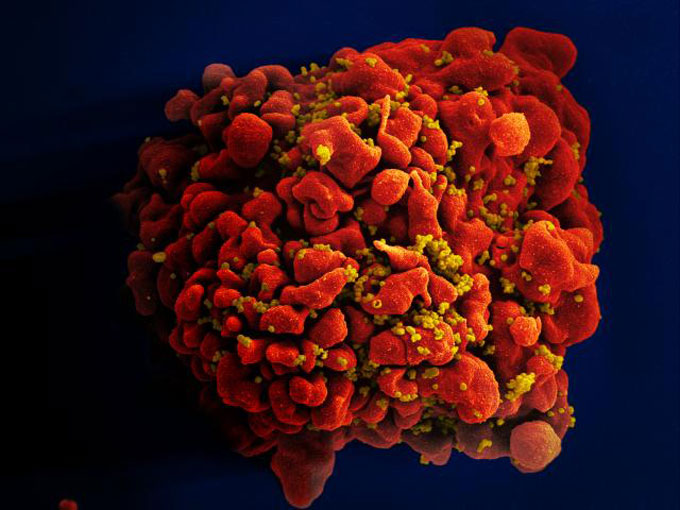 an extremely magnified photo of the HIV virus