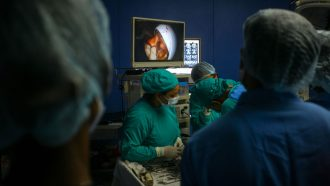 image of doctors performing surgery on a mucormycosis patient in India