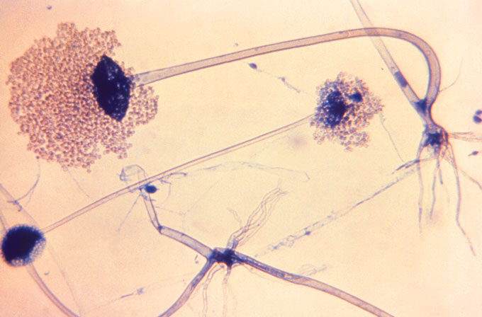 microscope images of Rhizopus arrhizus spores