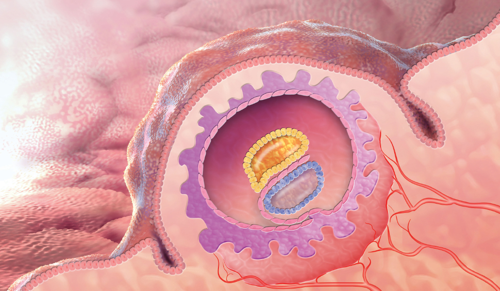 illustration of an egg implanted in the uterine wall