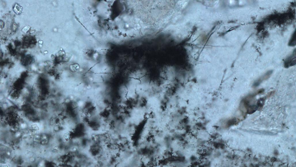 microscope image of archaea