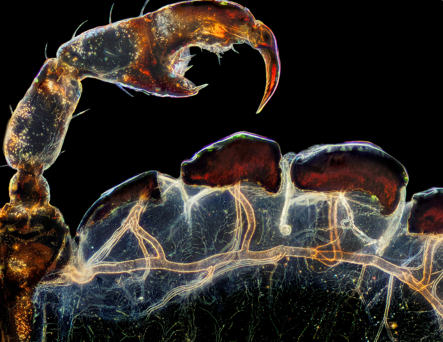 a microscopic close-up of a hog louse's claw