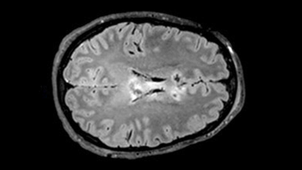 scansione cerebrale